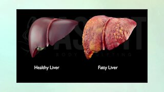 Weight and Your Liver