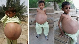 Nine-year-old Pakistani boy with swollen belly of the size of beach ball is waiting for life-saving surgery  - Video