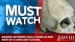 Bizarre deformed skull found as remnant of a Long Lost culture.. - Video
