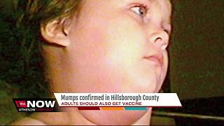 Mumps confirmed in Hillsborough Co. - Video