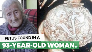 For 60 Years She Thought It Was A Tumor, Doctor Finally Tells Her The Truth - Video