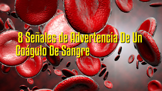 8 Señales de Advertencia De Un Coágulo De Sangre - Video