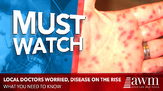 Local Doctors Worried After Spotting THIS Disease On The Rise - Video
