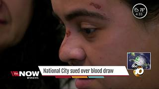 National City sued over blood draw - Video