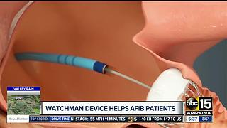 Watchman Device: Quarter-sized device helps reduce stroke risk for atrial fibrillation patients - Video
