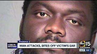 Man attacks wheelchair-bound man, bites ear off - Video