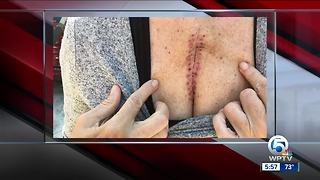 West Palm Beach stabbing victim tells her story of survival