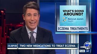 Eczema Treatments - Video