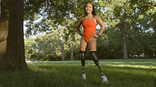 I Lost My Legs In A Bomb Explosion   SHAKE MY BEAUTY