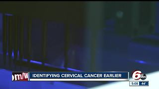 IU Health has new technology to help combat cervical cancer - Video