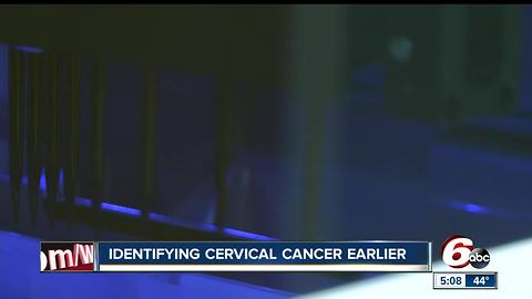 IU Health has new technology to help combat cervical cancer