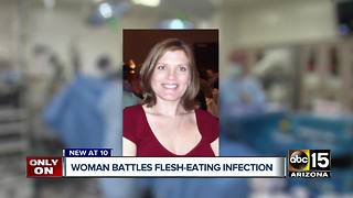 Valley woman battling flesh eating infection - Video