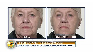 Amazing Results with Plexaderm