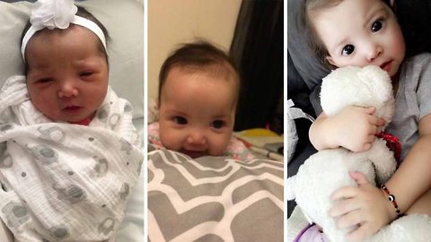 2-year-old with syndrome that results in oversized pupils loves the attention but has no idea why she's receiving it