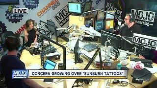Discussing 'sunburn tattoos' with Mojo in the Morning