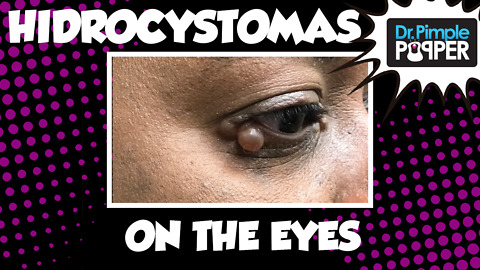 Hidrocystomas on both eyes!