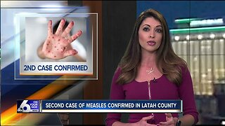 Second measles case confirmed in Idaho