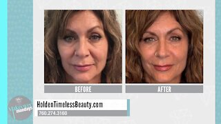 Makeover Mondays: Holden Timeless Beauty Discusses Liquid Facelifts