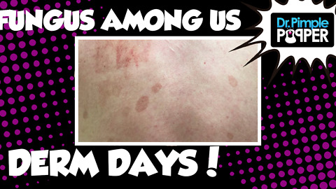 Derm Days: A Fungus Among Us | Diagnosing Tinea Versicolor