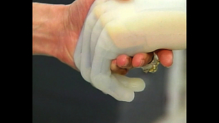 i-LIMB: Bionic Hand - Video
