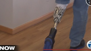 Amputee fitted with new prosthetic leg