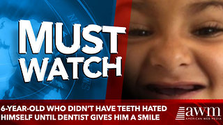 6-Year-Old Who Didn't Have Teeth Hated Himself Until Dentist Gives An Unreal Transformation For Free - Video