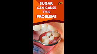 What Causes Cavity *