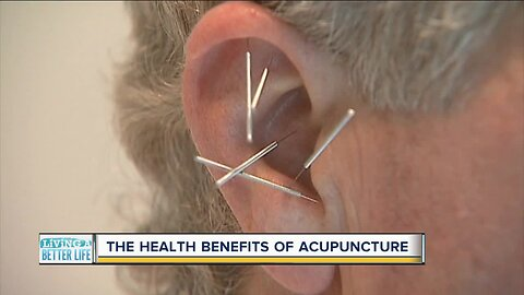 The health benefits of acupuncture