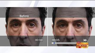 Rapidly Fix Puffy Eyes in Minutes - Video