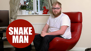 "Hospital worker tells how painful psoriasis has turned him into a ""human snake"" - Video"