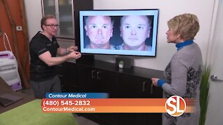 Contour Medical explains how they can give you smoother, younger looking skin