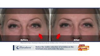 Reduce Wrinkles and Puffiness