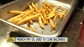 McDonald's french fries may be cure for baldness, according to new study - Video