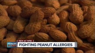 New treatments for peanut allergies - Video