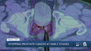 Early detection of prostate cancer critical for treatment, experts say