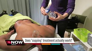 Ask Dr. Nandi: Does 'Cupping' actually work? - Video