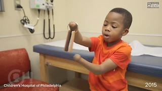 Child Receives First Double Hand Transplant In The US - Video