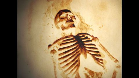 10 Unexplained Medical Conditions