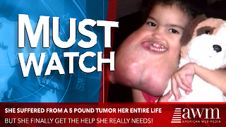 3-Year-Old Had 5-Pound Tumor Her Entire Life, Finally Gets Life-Changing Surgery - Video