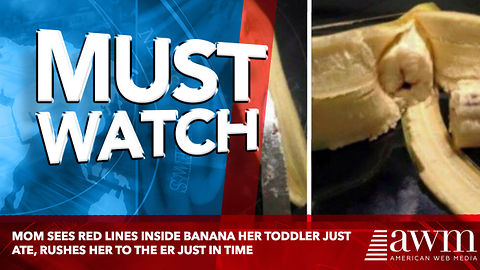 Mom Sees Red Lines Inside Banana Her Toddler Just Ate, Rushes Her To The ER Just In Time