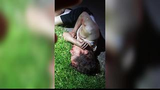 Nampa teen brutally beaten by juveniles at city park - Video