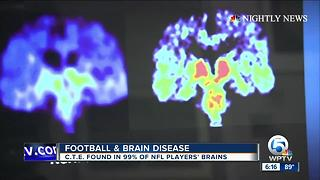 Reactions to new study on brain disease linked to football injuries - Video