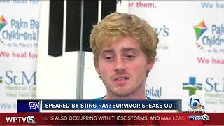 Man speared by sting ray speaks out - Video