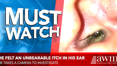 He Felt An Unbearable Itch Inside His Ear So He Takes A Camera To Investigate. Then It Pops Out.