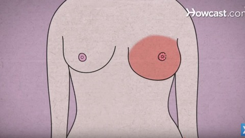 Breast Cancer Symptoms Everyone Needs to Know