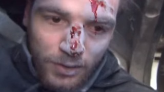 Syrian Journalist Wounded by Blast While Reporting on Strikes in East Ghouta - Video