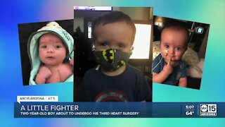 Two-year-old boy about to undergo third heart surgery