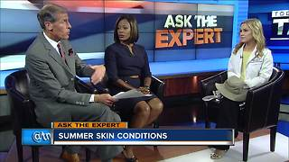 Ask the Expert: Treating summer skin - Video
