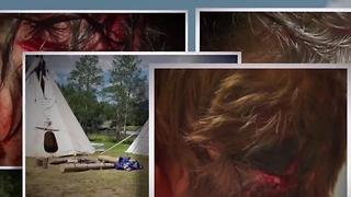 Bear attacks 19-year-old camp staffer - Video