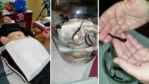 Mum-of-three in search of 'fountain of youth' undergoes leech therapy and now keeps the little bloodsuckers as pets in her home